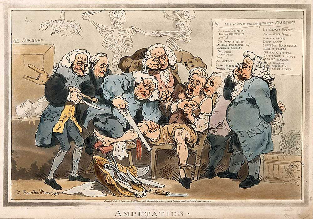 A cartoon on an amputation of part of the leg of a scared man by several surgeons