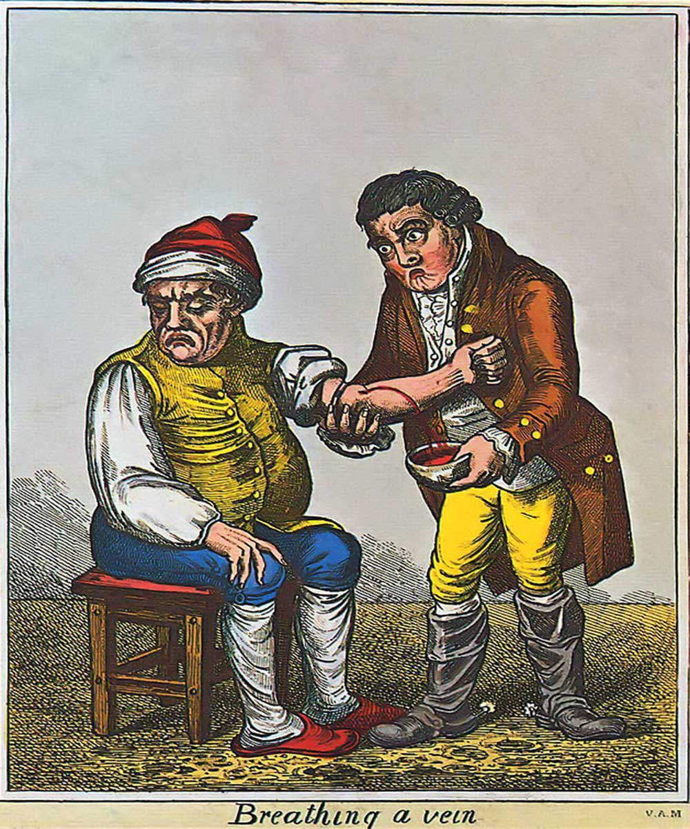 A cartoon on a bloodletting. A doctor is breathing a man's vein.