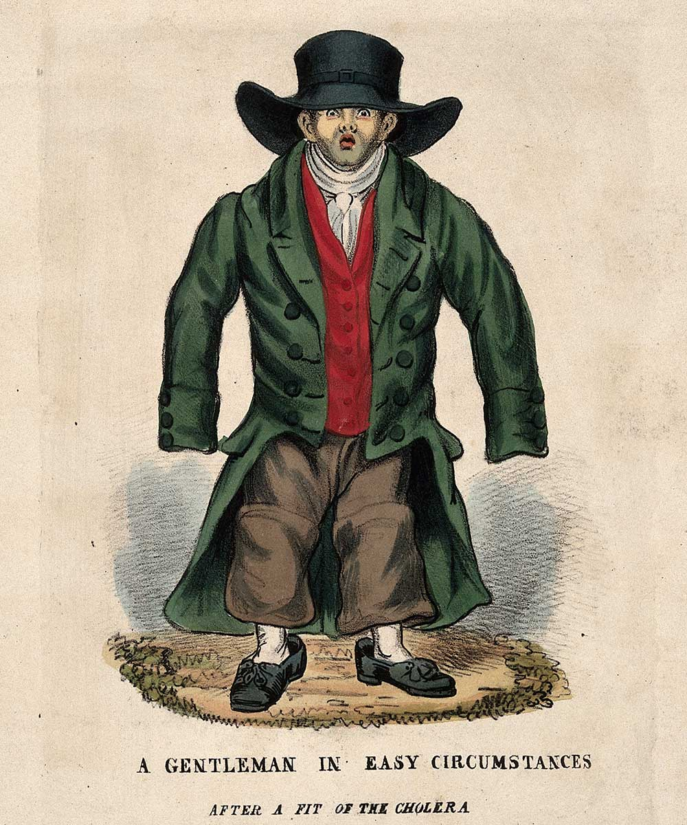 A cartoon on a man who's clothes do not fit anymore due to weight loss after being ill with cholera.